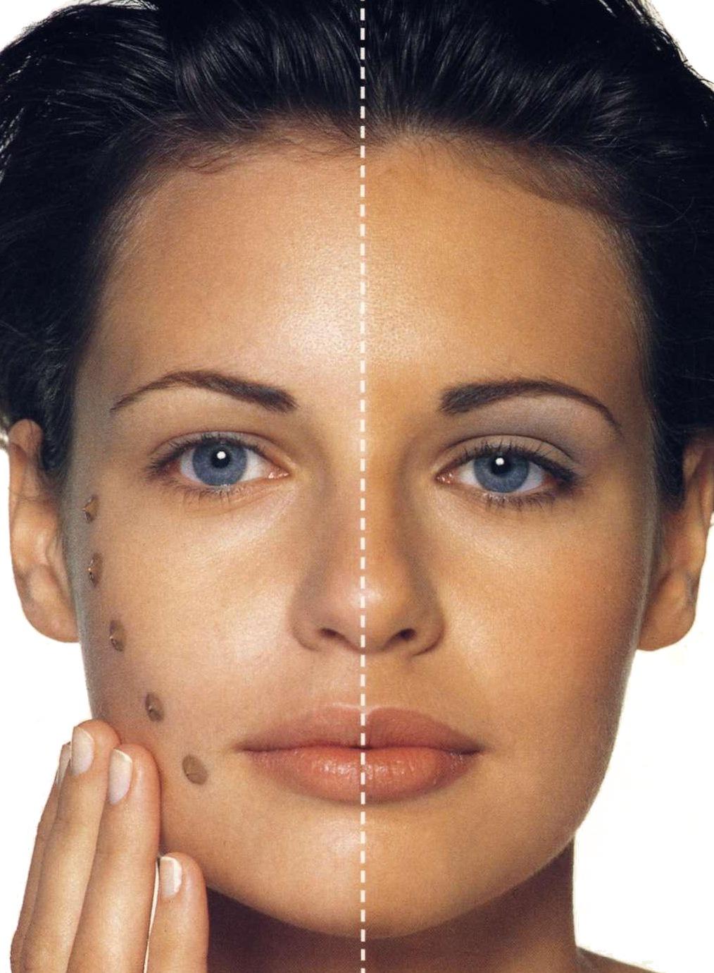 Как выровнять цвет лица. Маски, выравнивающие цвет лица 73